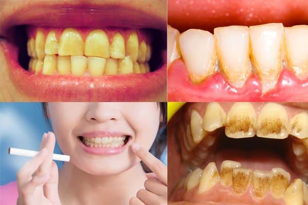 Blanqueamiento de dientes con carbón activado
