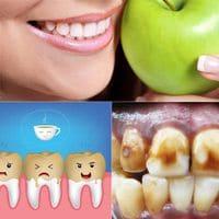 ¿Cómo deshacerse de las manchas marrones, amarillas y negras en los dientes?