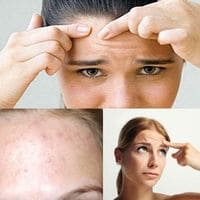 Pequeño acné en la frente: causas y métodos de lucha.