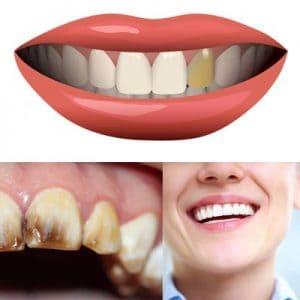 ¿Por qué los dientes se oscurecen y qué hacer?