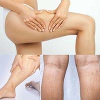 Estrías en las piernas: causas y métodos de lucha.