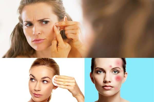Acne - causas y metodos de tratamiento.
