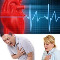 ?Que es la arritmia? ?Como mantener la salud del corazon?