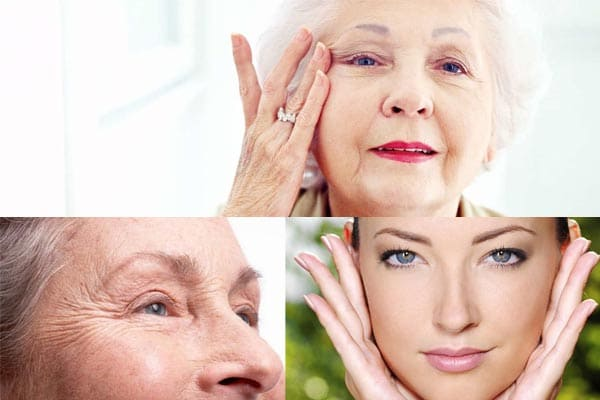 Etapas del envejecimiento de la piel