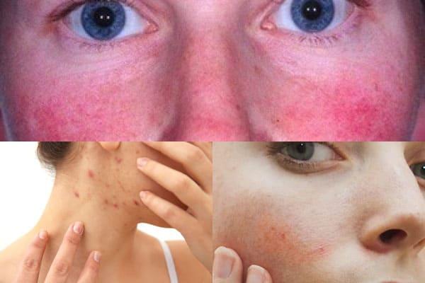 la aspirina para la cara